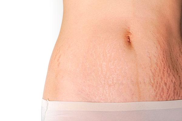 Mulher exibindo estrias brancas, estrias roxas e estrias vermelhas em sua barriga