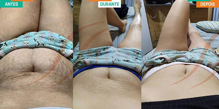 Foto 02 antes e depois Lari Dos Anjos